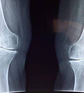 Kako uociti istegnuce zgloba Povreda zgloba