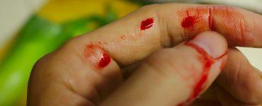 Kako zaustaviti arterijsko krvarenje Prva pomoc kod krvarenja
